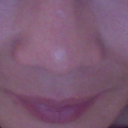 My nose on 05/10/12- before surgery